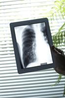 スマートデバイスに表示される胸部のX線写真