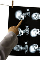 Doctor pointing at the image of CAT scan