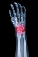X-ray of palm with pain