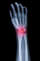X-ray of palm with pain 11010049747| 写真素材・ストックフォト・画像・イラスト素材|アマナイメージズ