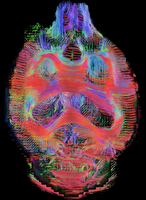 Coronal view of rat brain connectivity. Top view. Images reconstructed at 300 microns isotropic