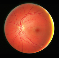 Fundus photograph of the left eye, showing the retina, macula, fovea and related structures