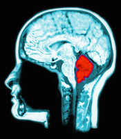 MRI scan of the brain, computer enhanced to highlight the cerebellum (red)