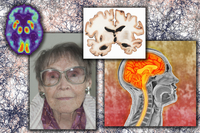 Elderly woman with Alzheimer's disease, illustration of brain section from person with Alzheimer's, scan of person affected by A