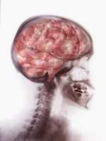 Illustration of the human brain superimposed over an x-ray of the skull