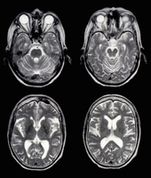 Axial brain MRI images of a normal 65 year old woman. Some of the structure seen include the eyes, eye musculature, temporal lob
