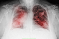 Chest x-ray of a 44 year old woman smoker, PA view, showing diffuse interstitial infiltrates suggestive of an atypical pneumonia