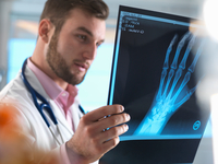 Junior doctor examining x-ray of fractured hand in hospital