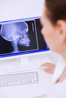 Side view of dentist looking at x-ray image on computer screen