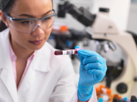 Scientist preparing clinical samples for medical testing in a laboratory