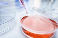 Pipette transferring solution into petri dish