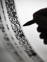 Scientist marking up DNA autoradiogram 11015322111| 写真素材・ストックフォト・画像・イラスト素材|アマナイメージズ