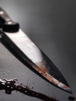 Close up of bloody knife 11015322867| 写真素材・ストックフォト・画像・イラスト素材|アマナイメージズ