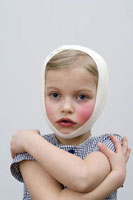 A young girl with a head injury and cheek injury