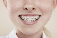 A smiling girl with braces on her teeth, close-up of mouth 11016026720| 写真素材・ストックフォト・画像・イラスト素材|アマナイメージズ