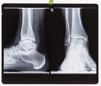 X-ray of the right foot ankle joint