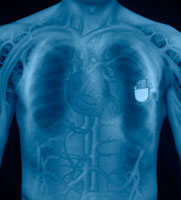 X ray of man s chest and pacemaker