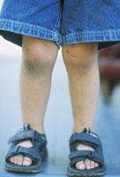 Young boys legs 11029004517| 写真素材・ストックフォト・画像・イラスト素材|アマナイメージズ