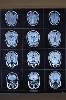 X-rays of human brain