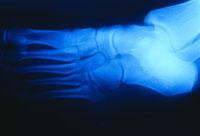 Foot X-Ray 11030005874| 写真素材・ストックフォト・画像・イラスト素材|アマナイメージズ