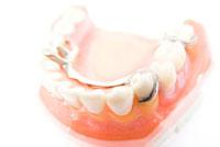 部分入れ歯の模型