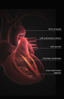 Sectional anatomy of heart