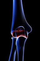 bones of elbow 11037000623| 写真素材・ストックフォト・画像・イラスト素材|アマナイメージズ