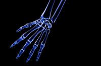 bones of hand 11037001867| 写真素材・ストックフォト・画像・イラスト素材|アマナイメージズ