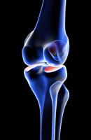bones of knee 11037004885| 写真素材・ストックフォト・画像・イラスト素材|アマナイメージズ