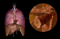 Asthma 11037007350  写真素材・ストックフォト・画像・イラスト素材 アマナイメージズ