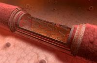 Angioplasty 11037007378| 写真素材・ストックフォト・画像・イラスト素材|アマナイメージズ