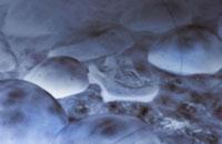 Merozoites of malaria 11037007615  写真素材・ストックフォト・画像・イラスト素材 アマナイメージズ