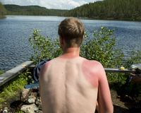 A sunburned man from behind