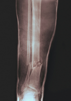 Fractured leg in plaster cast
