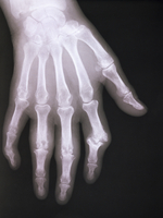X-ray of arthritic hand
