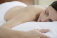 female patient receiving acupuncture treatment