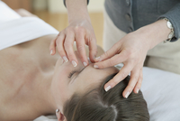 female patient receiving acupuncture treatment 11096021735| 写真素材・ストックフォト・画像・イラスト素材|アマナイメージズ