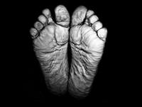 Bare crease feet, Piracicaba, Brazil