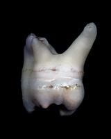 zoltan_s Wisdom tooth_01.tif