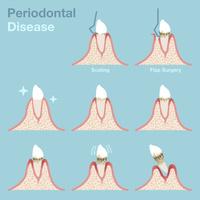 歯周病治療のイラスト
