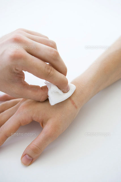 Person holding gauze against wounded hand,cropped view