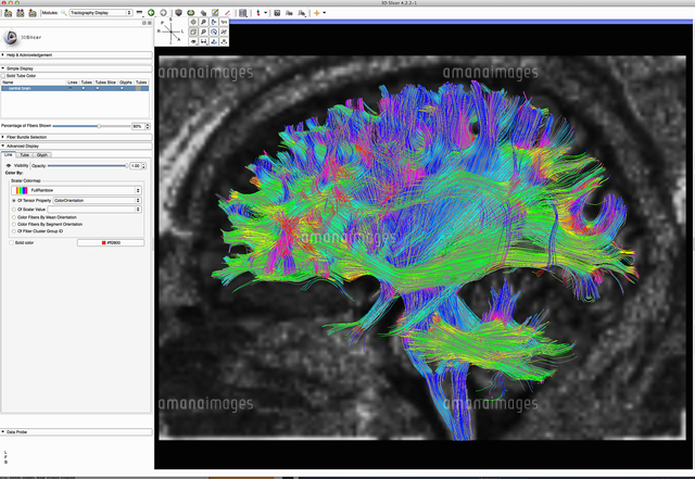 diffusion mri also referred to as diffusion tensor imaging or dti
