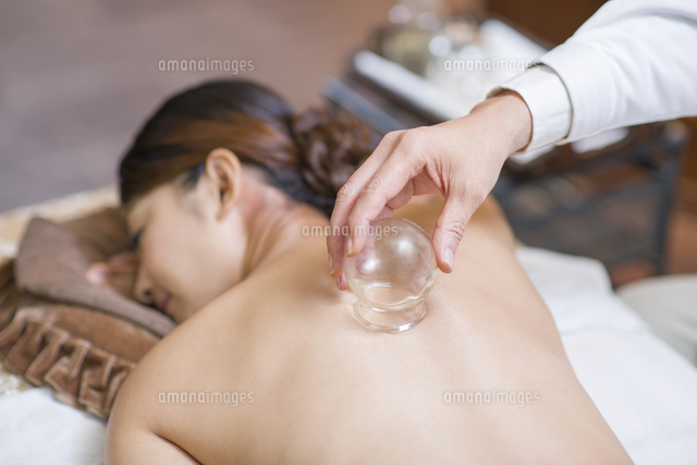 young woman receiving vacuum cupping treatment 11091018186 写真
